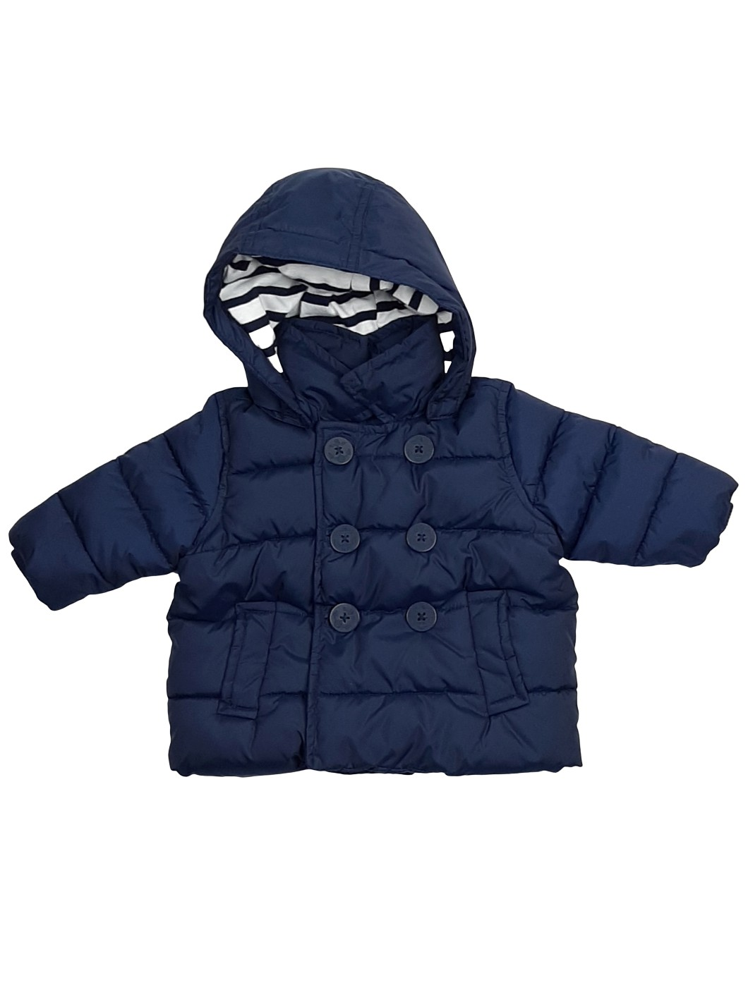 Manteau chaud matelassé 1